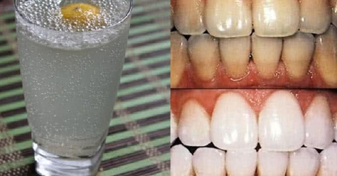 Tổng hợp các cách làm trắng răng hiệu quả và rẻ tiền ảnh 2