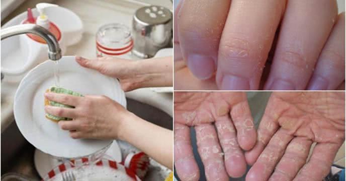 Rửa bát mùa đông không lo bị bong tróc da tay với công thức này